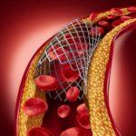 I trattamenti tradizionali per la disfunzione erettile
