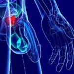 Problemi di erezione causati da lesioni al pene