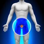 Cause di Disfunzione erettile ed erezione debole